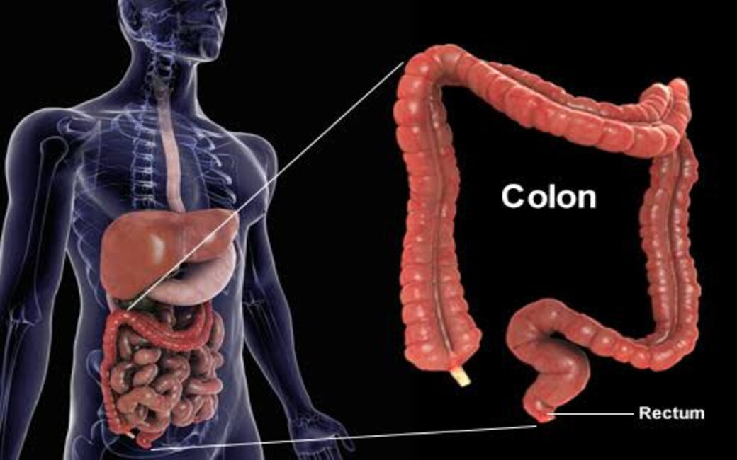 prevent colon cancer