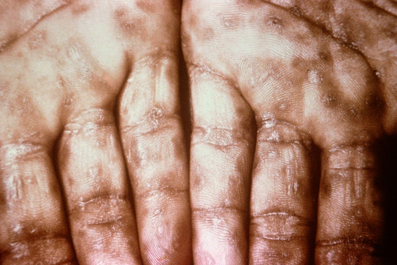 Syphilis-symptoms-treatment